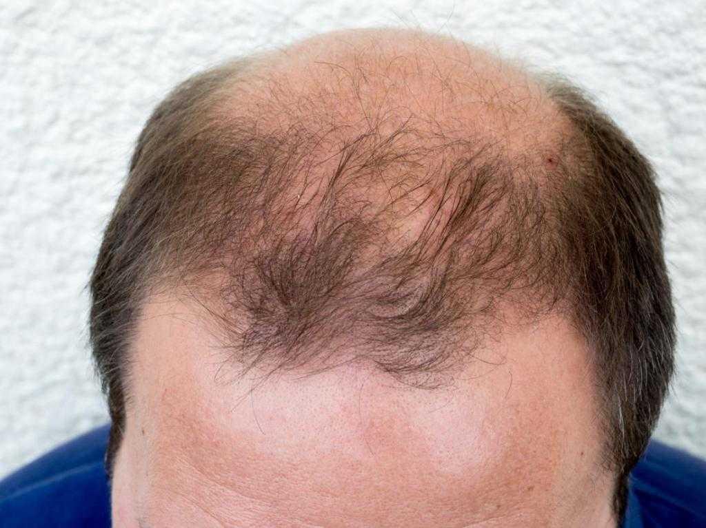 Волосы выпадают простатит предупреждение простатита у мужчин