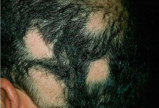 Простатит и волосы на теле виты простатита